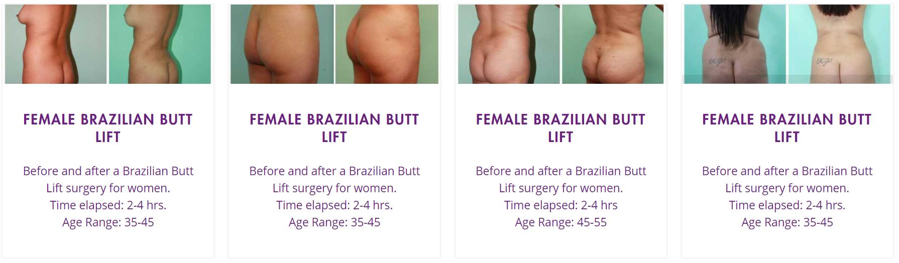 butt implants gallery