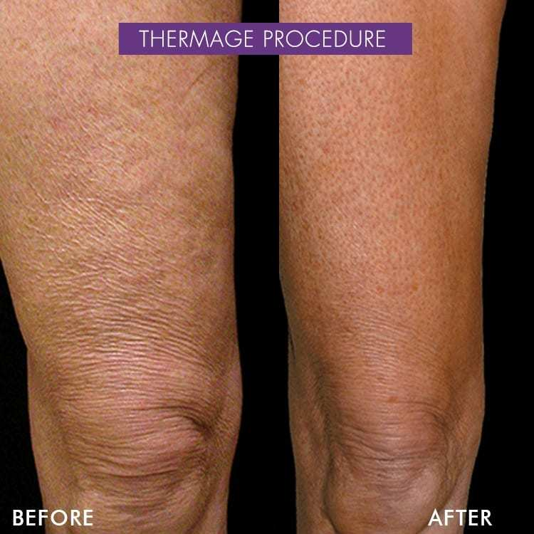 thermage before after knees