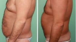 abdomioplasty_001