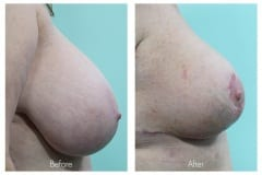 Breast Reduction surgery for women