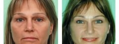 Female Brow Lift