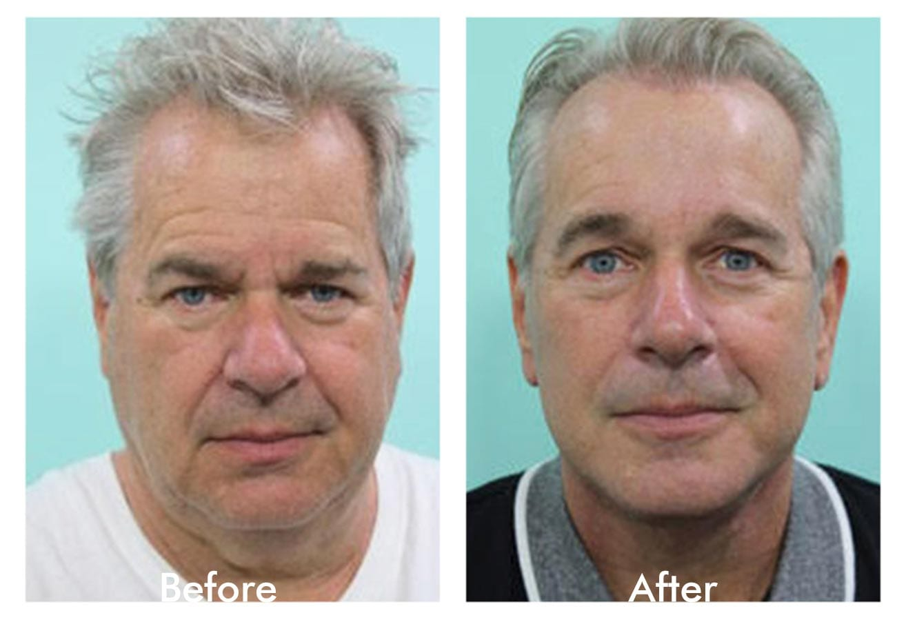Facelift for men