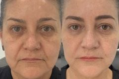 Facial Rejuvenation with Botox and Fillers