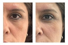 Lower eyelid bags treated with fillers