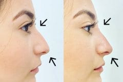 Non-Surgical rhinoplasty for women