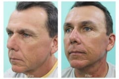 Facelift-Quiroz-Male-MF04A