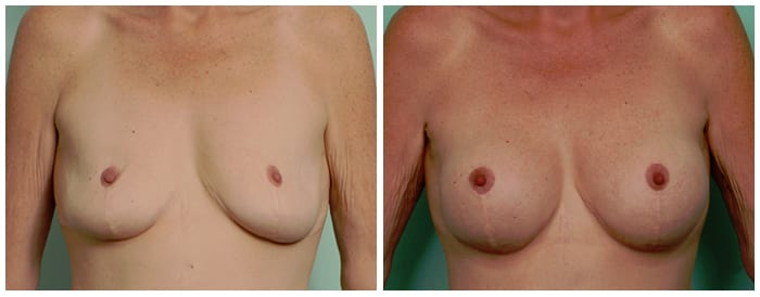 Breast Lift Revision Surgery