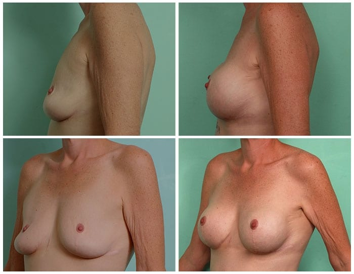 post-bariatric-breast-lift_002