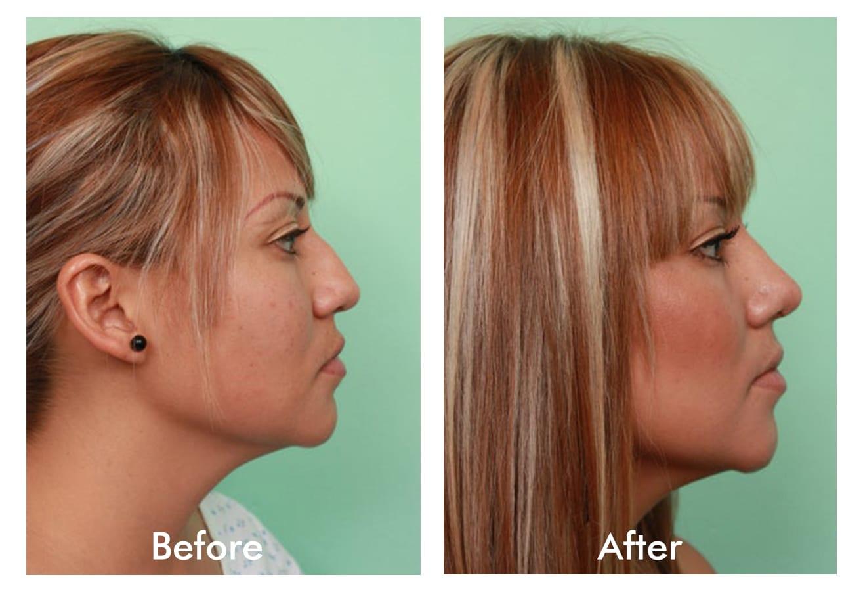Female nose job (Rhinoplasty)
